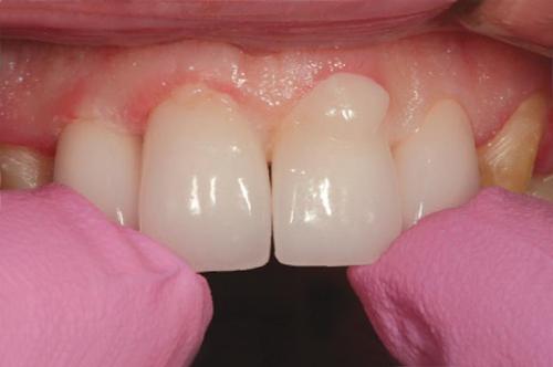Осторожно установите реставрацию на имплантат, позволив цементу вытекать со всех сторон.